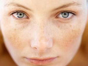 Cách chữa nám da mặt tại nhà trong ngày hè