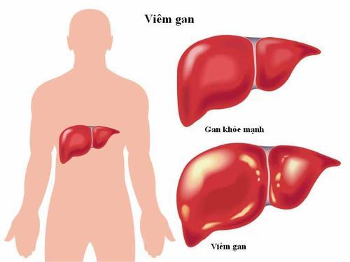 Bệnh viêm gan virus là gì?
