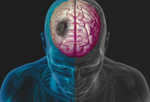 Bệnh đột quỵ là gì? Những thông tin cần biết về đột quỵ