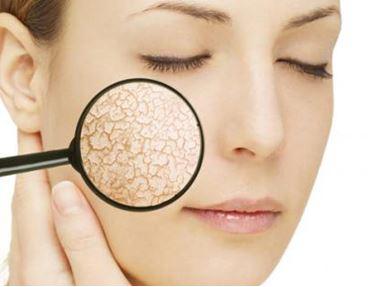 Phụ nữ có cần thiết phải bổ sung collagen và cách bổ sung Colagen hiệu quả
