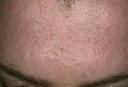 Cách trị mụn ẩn dưới da hiệu quả nhất, đẩy lùi nỗi lo mụn dưới da