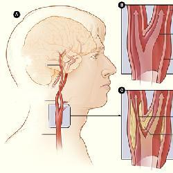 Tai biến mạch máu não và những điều cần biết
