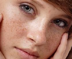 Cách trị nám da mặt hiệu quả nhất cho phái đẹp
