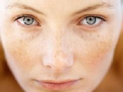 Điều trị nám da có khó không ?