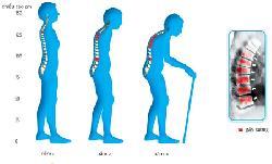 Phương pháp ngăn ngừa bệnh loãng xương hiệu quả