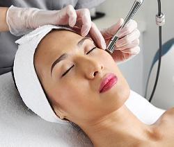 Nguyên nhân và cách điều trị nám râu nhanh và hiệu quả nhất