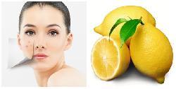 Tổng hợp cách trị mụn hiệu quả nhất cho các loại da bạn không nên bỏ qua