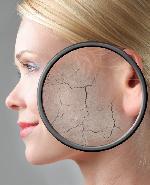 Top 5 cách giải quyết khi da bị lão hóa sớm hiệu quả nhất