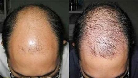 Tác dụng của thuoc moc toc Hair by revitalash