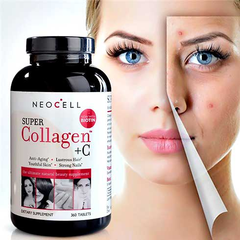Review neocell super collagen c